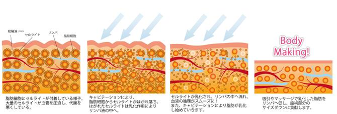 キャビテーションによる脂肪の乳化現象